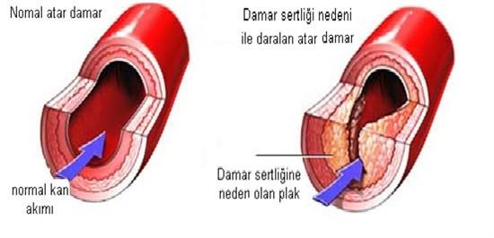 Damar Sertliği
