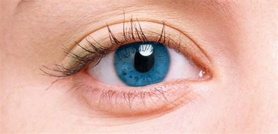 Göz Etçiği